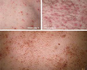 Cách chữa bệnh viêm lỗ chân lông không cần thuốc