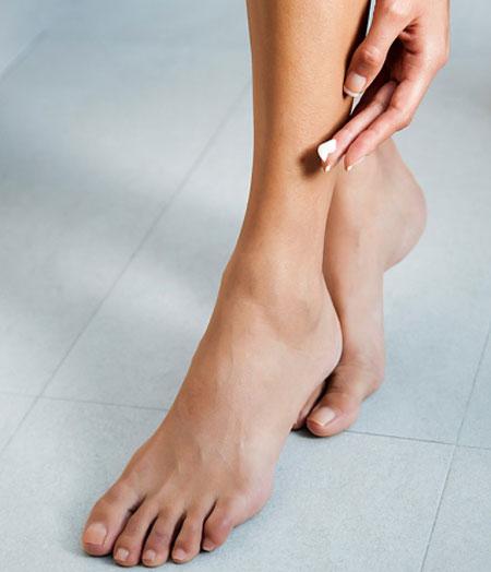 Cách làm mờ sẹo lâu năm ở chân giúp bạn tự tin diện váy đẹp