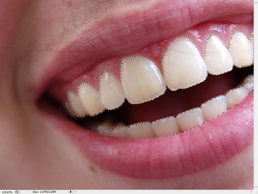 Cách làm trắng răng bằng photoshop cực hay